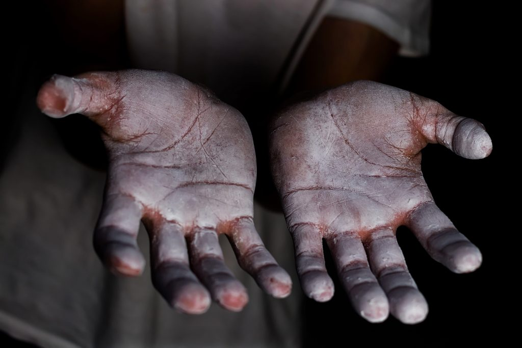 climber's hands covered in chalk